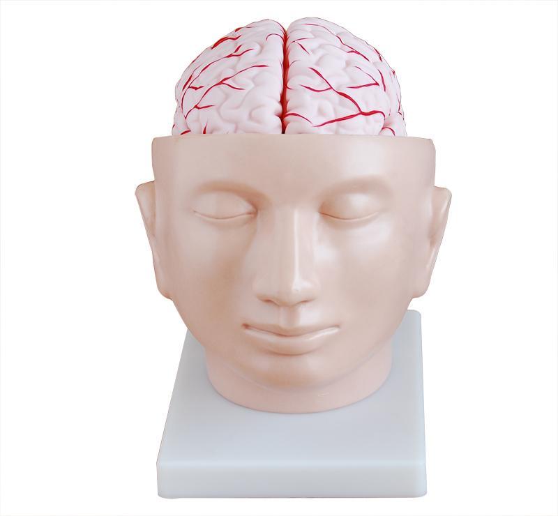 Brain with Arteries on Head 1