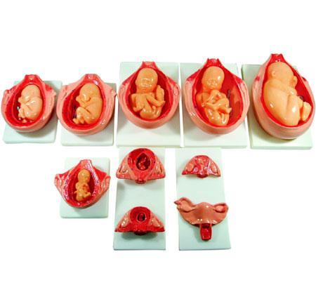 The Development Process for Fetus 1