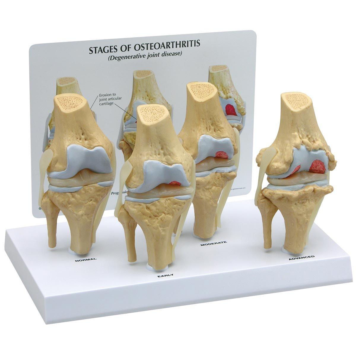 osteoarthiritis knee model